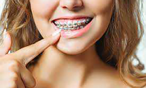What To Know Before Getting Braces